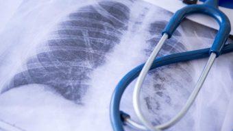 Sjukdomar i cirkulations- och andningsorganen